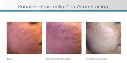 Sublative Rejuvenation for Acne Scarring in Houston TX, Sublative Rejuvenation for Acne Scarring near Energy Corridor Houston TX, Sublative Rejuvenation for Acne Scarring near Memorial City Houston TX, Sublative Rejuvenation for Acne Scarring near Town & Country Houston TX, Sublative Rejuvenation for Acne Scarring near the 77024 area Houston TX, Sublative Rejuvenation for Acne Scarring near the 77079 area Houston TX